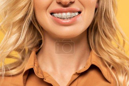 Photo pour Vue croustillante d'une femme souriante dans un appareil dentaire isolée en jaune - image libre de droit