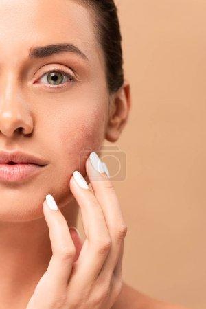Photo pour Crochet vue d'une fille touchant le visage avec la peau problématique et regardant la caméra isolée sur beige - image libre de droit