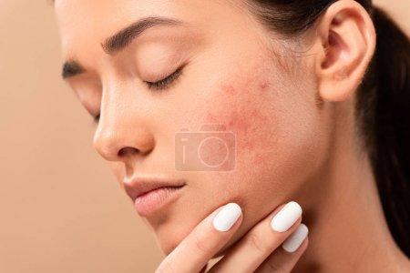 Photo pour Jeune femme aux yeux fermés touchant le visage avec de l'acné isolée sur beige - image libre de droit
