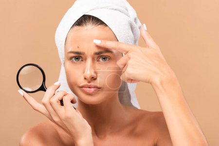 displeased girl pointing with finger at pimple on face and holding magnifier isolated on beige
