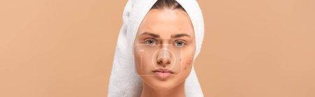 Photo pour Photo panoramique de femme en serviette avec acné sur le visage isolée sur beige - image libre de droit