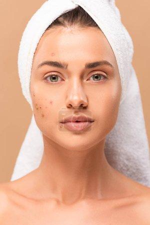 Photo pour Nue en serviette avec l'acné sur le visage regardant la caméra isolée sur beige - image libre de droit