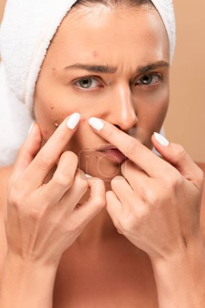 Photo for Young woman in towel squeezing pimples isolated on beige - Royalty Free Image