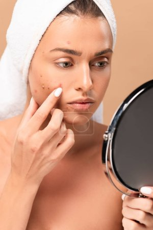 nude girl in towel touching face with pimples and looking at mirror isolated on beige