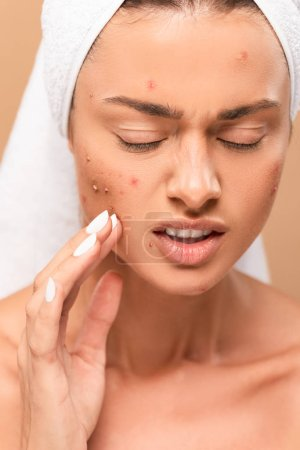 Photo for Displeased nude girl in towel touching acne on face isolated on beige - Royalty Free Image