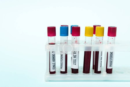 Test tubes with blood samples of insulin and hormones tests in stand isolated on blue