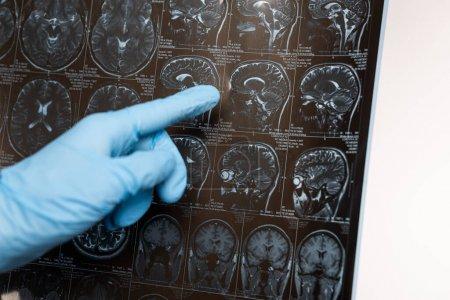 Photo pour Vue recadrée du médecin pointant sur l'imagerie par résonance magnétique du cerveau isolé sur blanc, concept de la maladie d'Alzheimer - image libre de droit