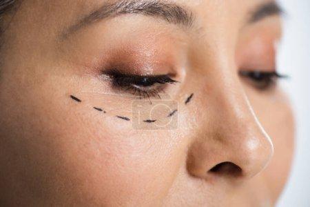 Photo pour Gros plan de femme asiatique avec chirurgie plastique correction marque sur le visage isolé sur gris - image libre de droit