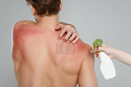 Photo pour Vue recadrée de la femme avec bouteille de pulvérisation près de l'homme touchant la peau avec des coups de soleil isolés sur gris - image libre de droit