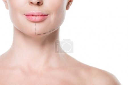 Photo for Cropped view of woman with painted lines on face for plastic surgery isolated on white - Royalty Free Image