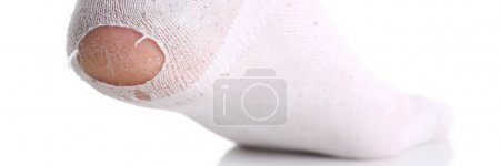 Ripped white sock on male leg isolated