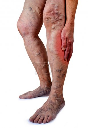 The varicose veins on a legs of old woman