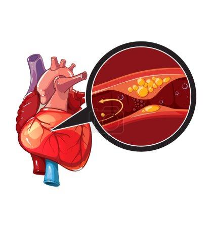 Myocardial infarction. Illustration of human heart...