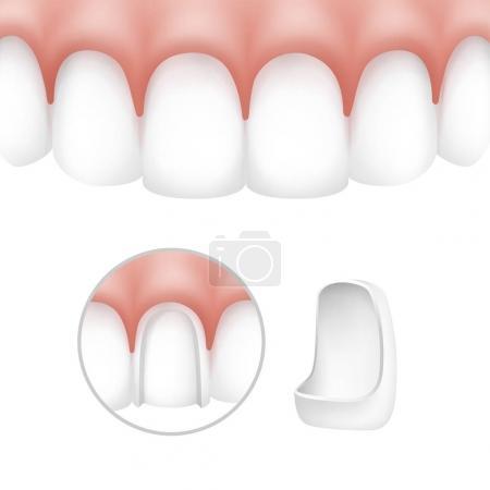 Dental veneers on human teeth