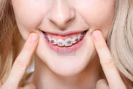 Photo for Closeup of a young woman pointing to her teeth with braces. - Royalty Free Image