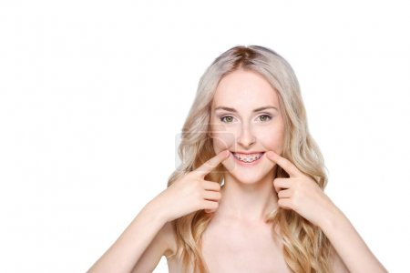 Photo pour Portrait d'une jeune femme caucasienne pointant vers ses dents avec des bretelles . - image libre de droit