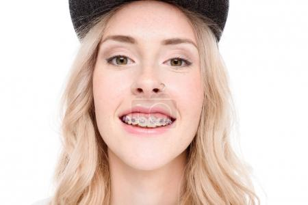 Smiling woman with braces