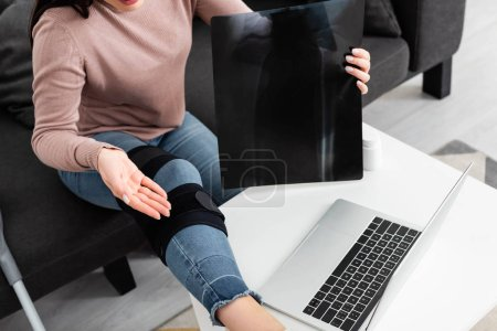 Photo for Cropped view of woman showing x-ray of leg on online consultation with doctor on laptop - Royalty Free Image