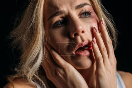 Scared Victim with open mouth and bruise touching face isolated on black