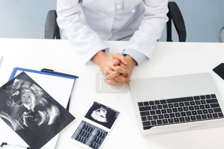 Photo pour Vue recadrée du médecin professionnel féminin en clinique avec des échographies et un ordinateur portable - image libre de droit