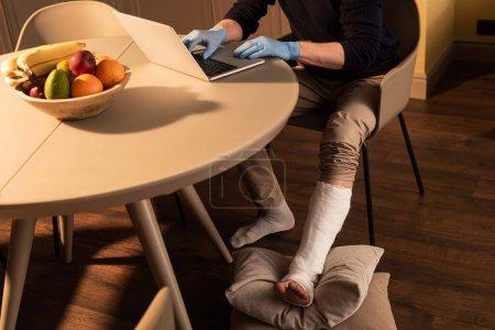 Photo pour Vue recadrée de l'homme avec bandage en plâtre sur la jambe et des gants en latex à l'aide d'un ordinateur portable sur la table dans la cuisine - image libre de droit