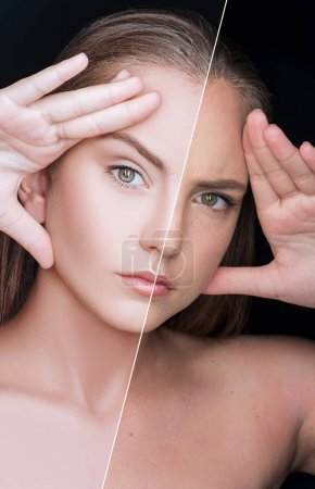 girl before and after skin care