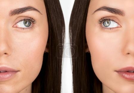Photo pour Visage de jeune femme attirante avant et après retouche isolé sur blanc - image libre de droit
