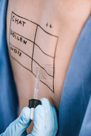 Photo pour Foyer sélectif du médecin tenant la pipette près de la femme avec des lettres sur le dos marqué - image libre de droit
