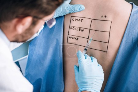 Photo for Selective focus of allergist holding pipette near patient with letters on marked body - Royalty Free Image