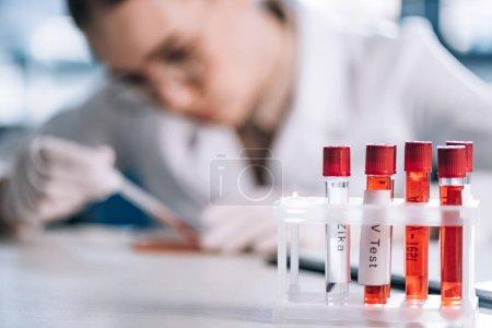 Photo pour Mise au point sélective du tube à essai en verre avec lettres proche immunologiste - image libre de droit