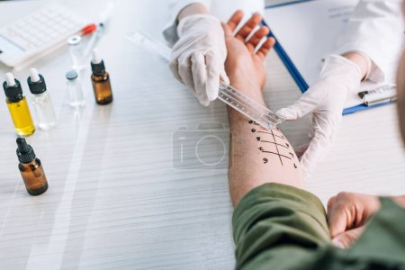 Photo pour Overhead of allergist holding ruler near marked hand on man in clinic - image libre de droit