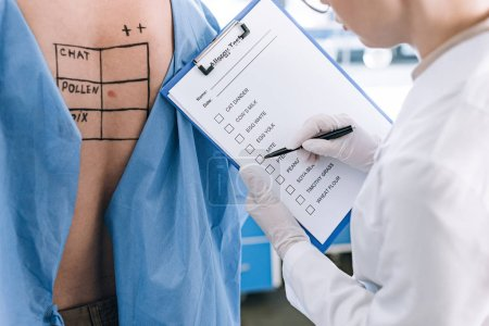 Photo for Cropped view of allergist holding pen near checklist while holding clipboard near patient - Royalty Free Image