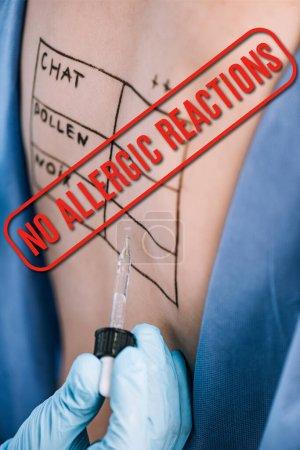 Foto de Enfoque selectivo del médico que tiene pipeta cerca de la mujer con letras en la espalda marcada sin reacciones alérgicas ilustración. - Imagen libre de derechos