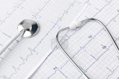 stethoscope laying on paper with cardiogram isolated on white background