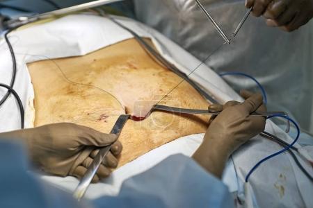Laparoscopy operation process