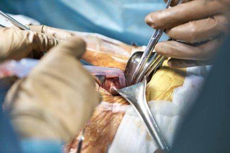 Abdominal operation process