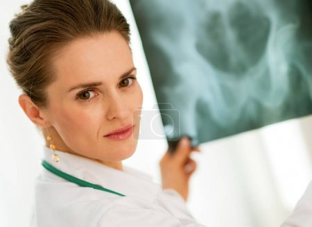 medical doctor woman with fluorography