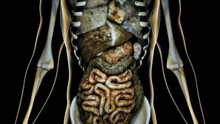 Sick Internal Organs in a Transparent Human Body Anatomical Conc