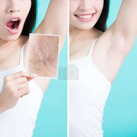 Photo for Beauty woman holding  picture with under armpit problem before and after - Royalty Free Image