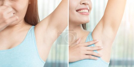 Photo for Beauty woman with body odor problem before and after - Royalty Free Image
