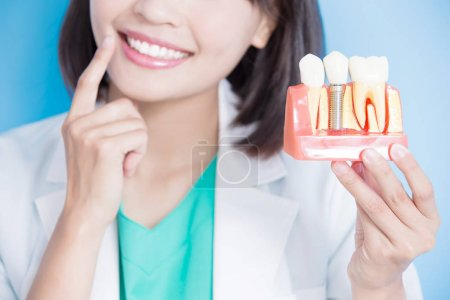 dentist with  implant tooth model