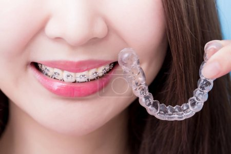 woman wearing  braces for your health concept