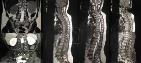 Photo pour Fermez l'IRM. Masse extramédullaire intradurale de la colonne vertébrale entière à la compression latérale du cordon Lt - image libre de droit
