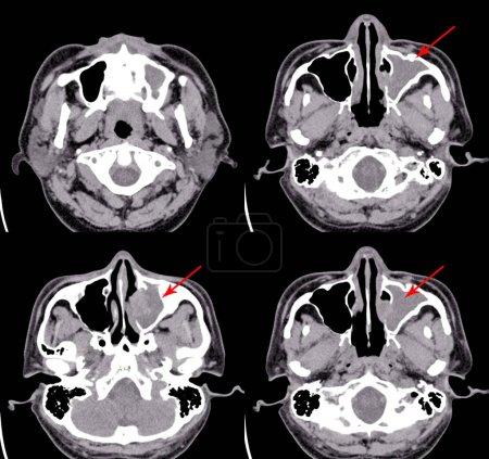 Photo pour CT Cerveau et sinus paranasaux Impression générale : Sinusite chronique du sinus maxillaire Lt.Le cerveau et l'orbite inclus semblent normaux.Concept d'image médicale . - image libre de droit