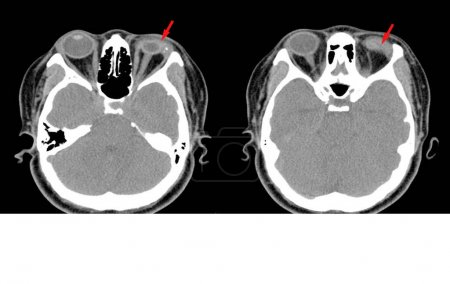 Photo pour CT-Scan cerveau et orbite En cas d'accident, la bouteille explose, éclabousse dans les yeux.Impression générale : Rupture du globe oculaire gauche avec luxation ou destruction de la lentille. . - image libre de droit