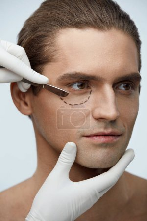 Plastic Surgery. Portrait Of Handsome Man With Lines On Face