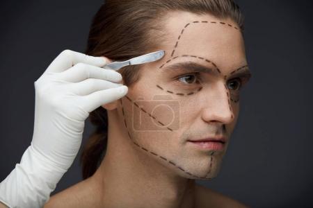 Photo pour Opération de cosmétique. Portrait de jeune homme avec des lignes noires chirurgicaux sur le visage avant la chirurgie plastique. Gros plan des mains du médecin avec Scalpel près de la peau du visage du Patient. Soin de beauté. Haute résolution - image libre de droit