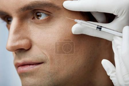 Close Up Handsome Male Receiving Skin Lifting Injections In Face