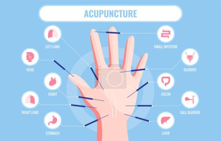 Vector illustration of traditional Chinese acupuncture medicine