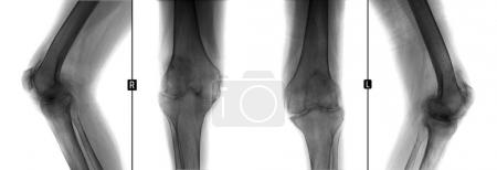 X-ray of the knee joints. Shows the arthritis progressiva deformans of knee joints. Man 38 years old. Negative.